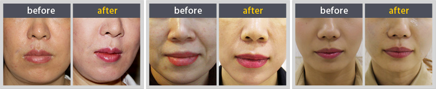 Facial Thread Lifting before & after