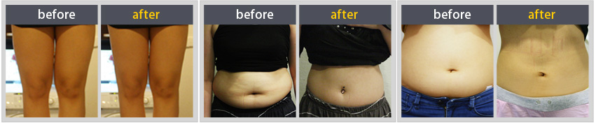 Body contouring injection-obesity& muscle reducing injection before & after