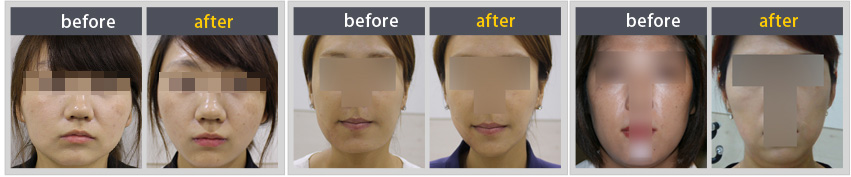 Facial contouring Before & After